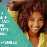 Summer Smiles: Tips To Keep Your Smile Bright After Whitening
