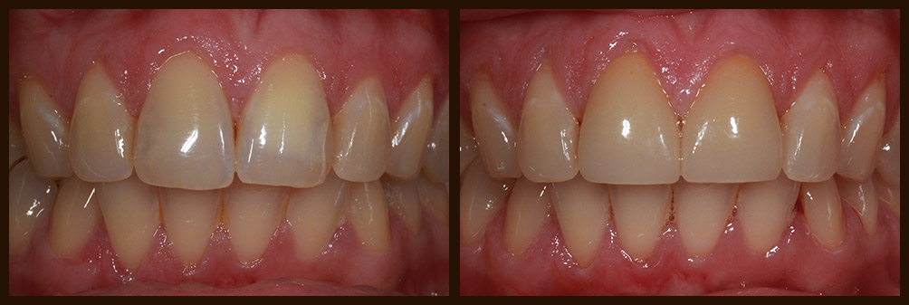 A before and after case study of an actual patient of Dr. Nichole Martin in Lynnwood, WA