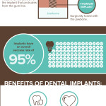 The Tooth Fairy Didn't Show Up - and 10 Other Reasons to Consider Dental Implants