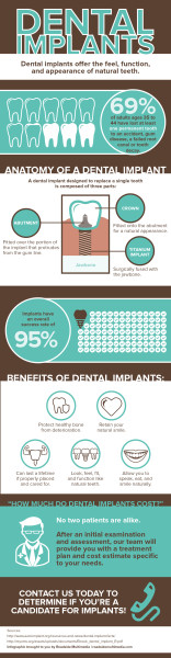 Social Infographic 15014 - Implants